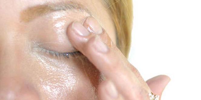 Göz altı torbaları neden olur? Tedavisi nedir?